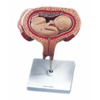 Uterus mit Embryo 5. Monat Rückenlage
