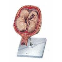 Uterus mit Embryo 5. Monat Zwillinge