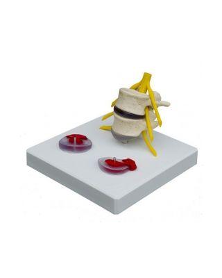 Hernie-Modell mit Sockel